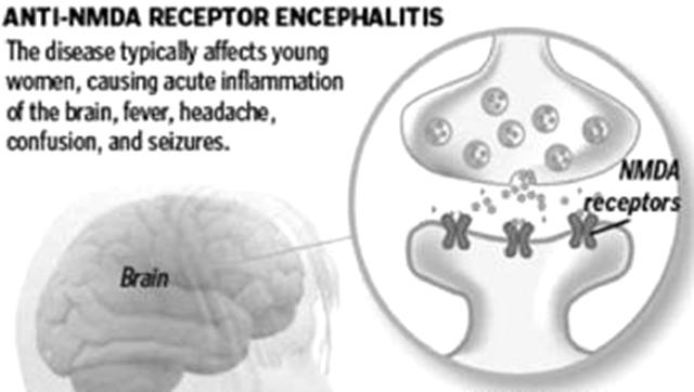 Anti-NMDA-Receptor-Encephalitis